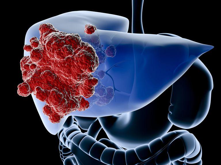 Rak dojke proširen na jetru